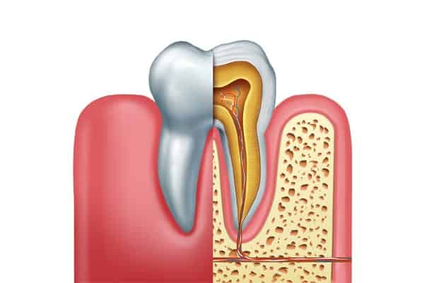 Root Canal - Motivo Dental