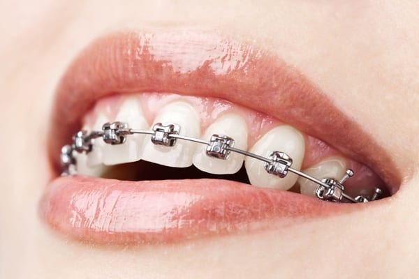 braces-motivo dental